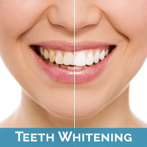 Teeth Whitening in Bayside
