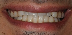 Before and After Teeth Whitening in Bayside