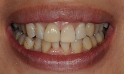 Before and After Dental Implants in Bayside