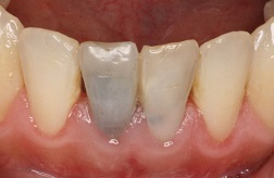 Bayside Before and After Dental Implants