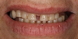 Before and After Dental Fillings in Bayside